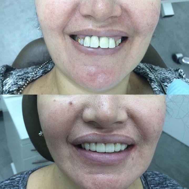 Виниры в стоматологии отзывы