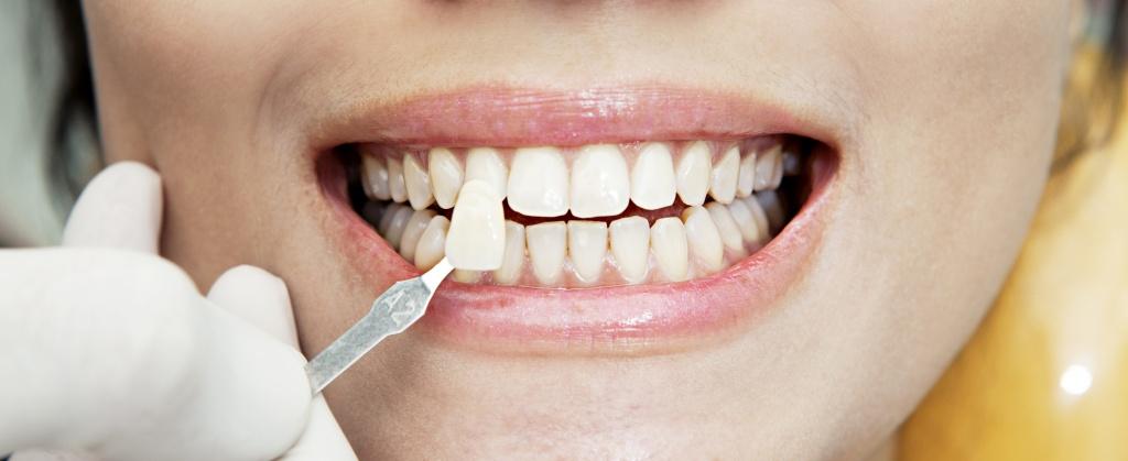 подбор виниров по цвету зуба