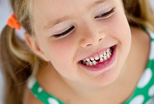Восстановление молочных зубов