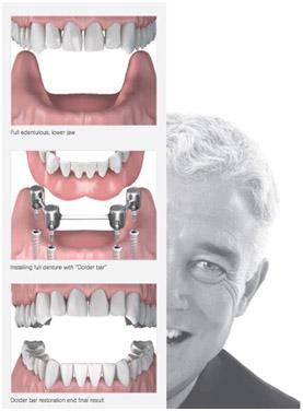 имплантация всех зубо