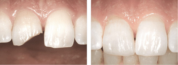 Восстановление сколов на зубах
