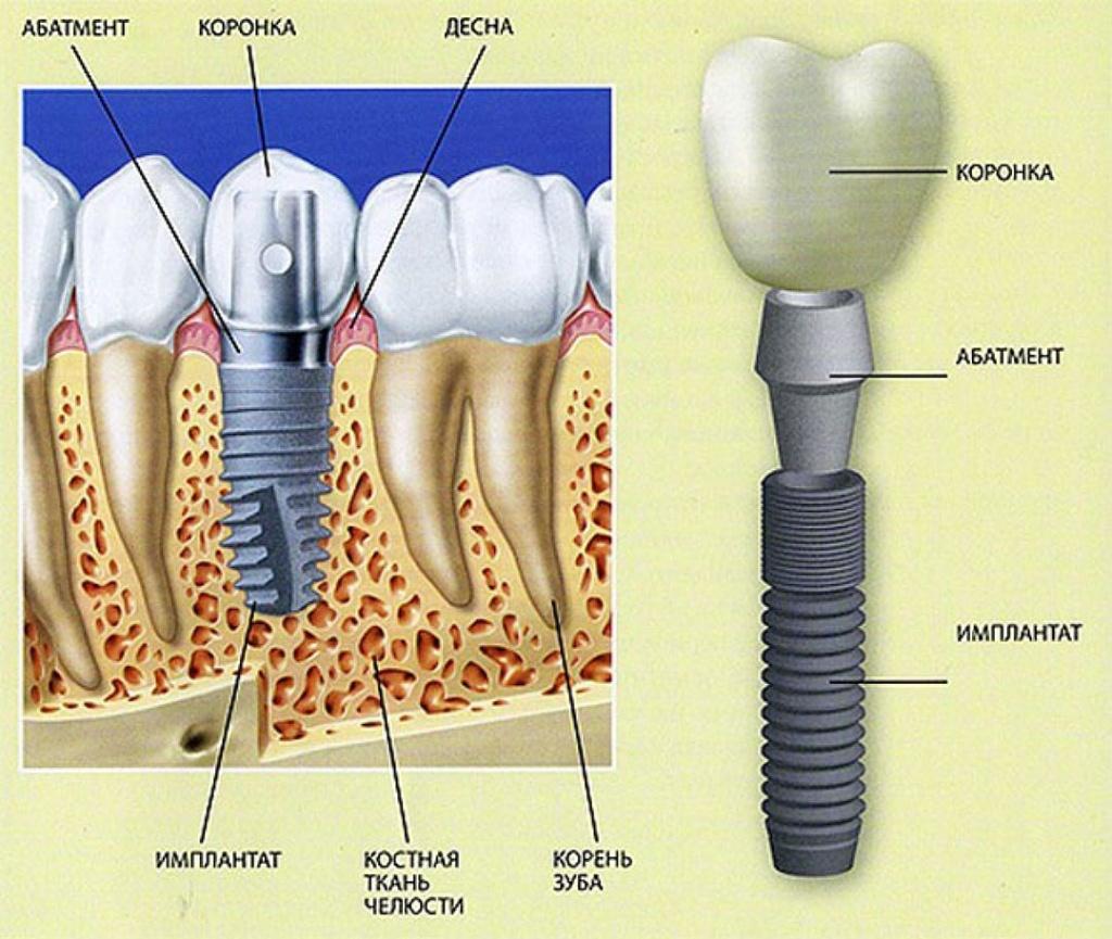 Зубной имплант в Минске