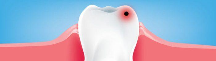 Причины возникновения зубной боли