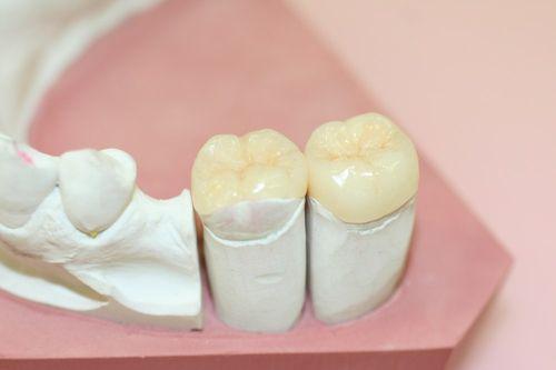 Керамические вкладки на зубы в Минске