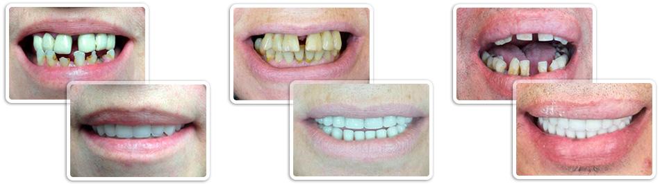 стоматолог имплантолог