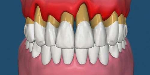 Повышенная подвижность зубов
