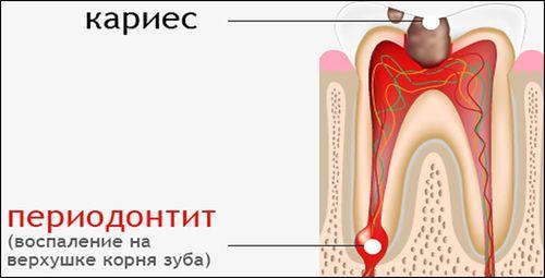 лечение периодонтита в Минске