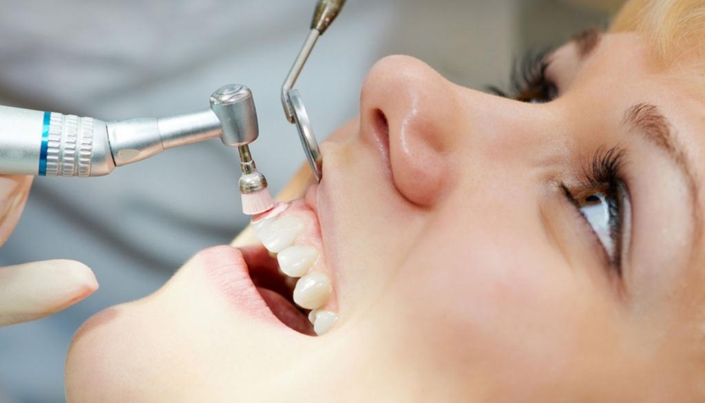 Удаление зубного камня специальными инструментами