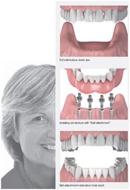 имплантация всех зубов под ключ