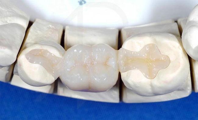Реставрация зубов с помощью вкладок