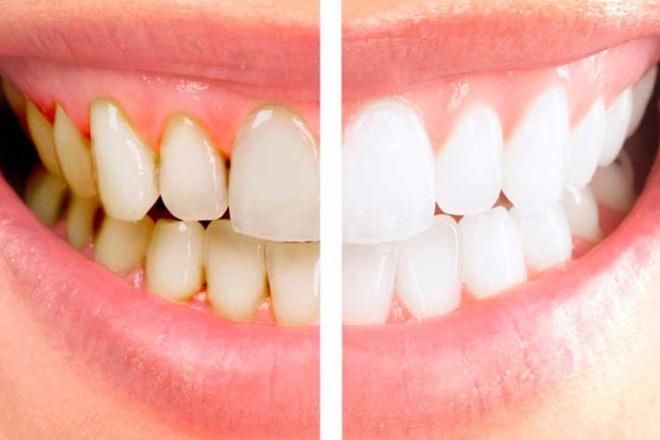 ультразвуковая чистка зубов до после