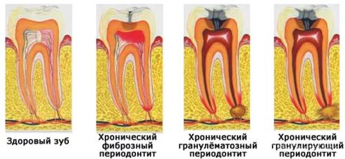 лечение острого периодонтита