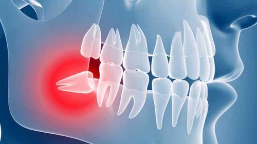 противопоказания одноэтапной имплантации зубов