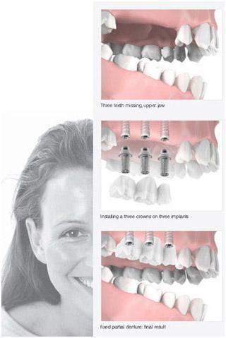 имплантация нескольких зубов под ряд