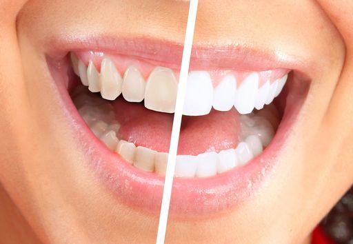 Отбеливание зубов до и полсе
