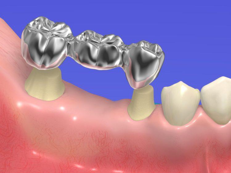 Протезирование зубов коронковидной конструкцией