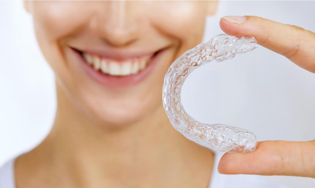 Отбеливание зубов с помощью капы