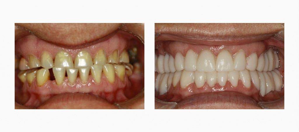 врач стоматолог имплантолог в минске